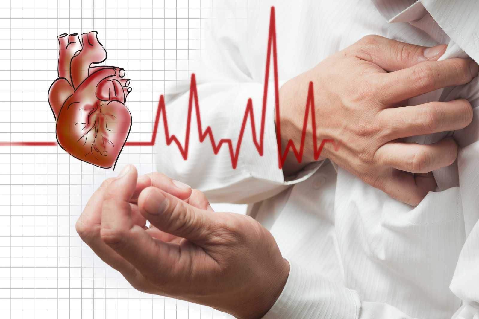Стенокардия: как унять сердечный приступ